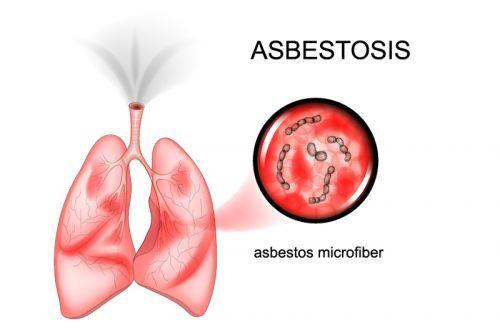 Асбестоз легких – один из видов заболевания респираторной системы, связанных с воздействием амфиболового асбеста. Источник: shutterstock